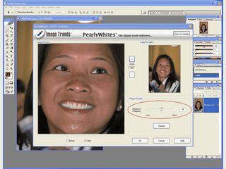 Plugin zur automatischen Weissfäbrung von Zähnen auf Bildern.